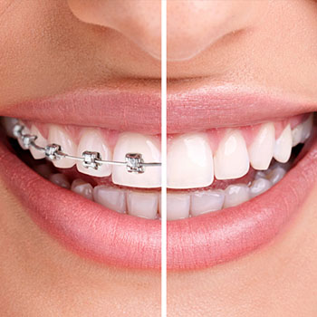 Orthodontics in Fresno CA