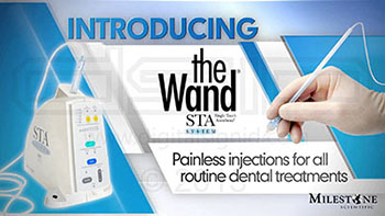 The Wand - STA in Fresno CA